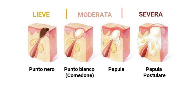 classificazione evoluzione acne